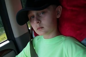 Trenton McKinley continues to suffer from nerve pain and daily seizures and will have to go through a final surgery to reconnect the missing pieces of his skull. He has already had three brain surgeries so far.