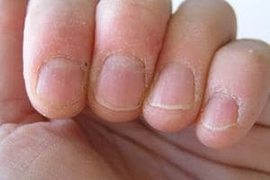 Skin peeling around nails due to dryness (Getty Images/iStockphoto)