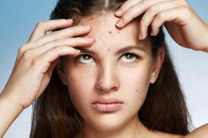 Pimple and acne can be cause by your habits and not only the genes and hormones. (Shutterstock)
