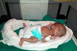 Newborn girl weighing 830 grams was admitted to neonatal intensive care unit (NICU) at the district hospital in Dholpur.
