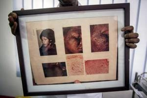Photos| Skin bleaching in Africa: An 'addiction' with risks