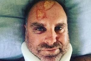 Matthew Hayden posted a photograph of his injury