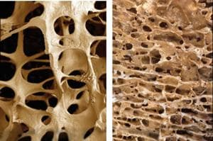 Osteoporosis is dangerous as bones become fragile and can break easily