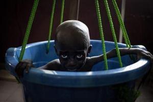 Photos: Malnutrition stalks children in tattered Central African Republic
