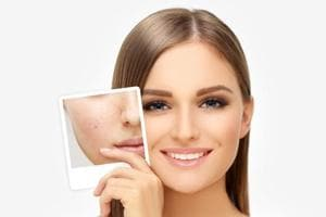 Lasers can provide 60-70% improvement in your acne scars. However, there is no such thing as 100% improvement. Regardless of the treatment, you can't completely remove the scar.