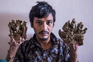 'Can't bear the pain anymore': Bangladesh 'Tree Man' wants hands amputated