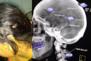 With three bullets in head, Punjab woman drives 7km to police station