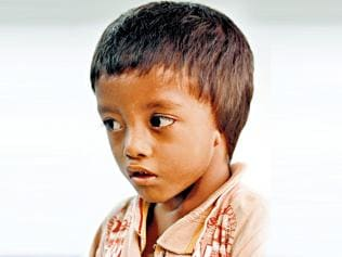 Born without ears, 4-year-old Nepal boy waits for a miracle