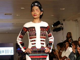 Can ramp help the cause of acid attack survivors?