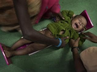 Malnutrition: Pay attention to the Palghars within Mumbai