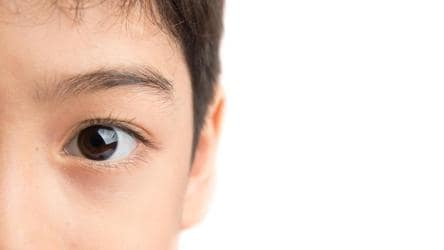 Risk From Soft Contact Lens Wear May Be Lower In Children Compared To Teenagers Fitness Hindustan Times
