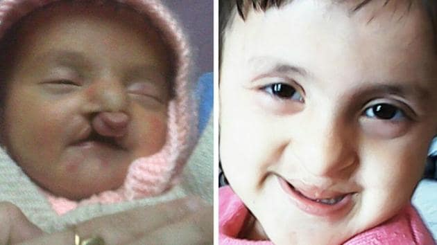Ridhi Vashisht before and (right) after the cleft lip surgery.(HT Photo)