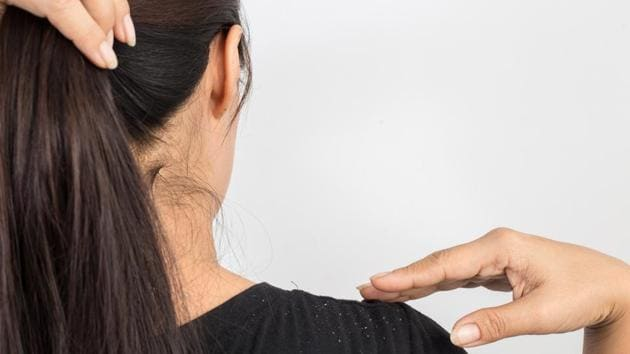 Here are quick home remedies that will ensure that dandruff dies a natural death and leaves your scalp clean.(Shutterstock)