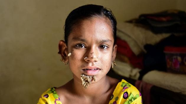 """Bangladeshi patient Sahana Khatun, 10, could be the first female ever afflicted by so-called """"tree man syndrome"""".(AFP Photo)"""
