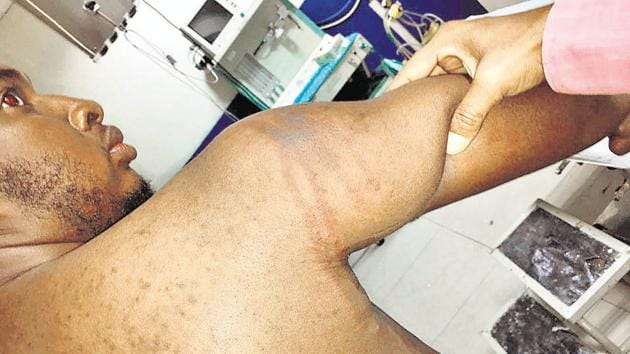 A Nigeria national who is residing in Greater Noida was attacked by locals on Sunday night.
