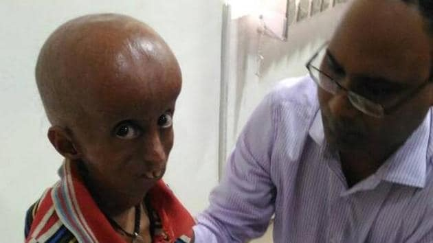 Rupesh was taken to SRN Hospital where he underwent a series of medical tests.(HT Photo)