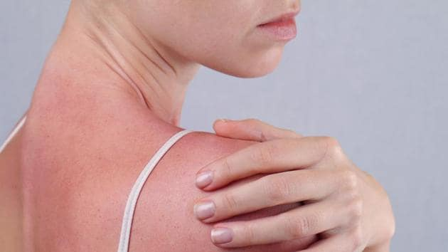 Damage from sun can be reversed.(Shutterstock)