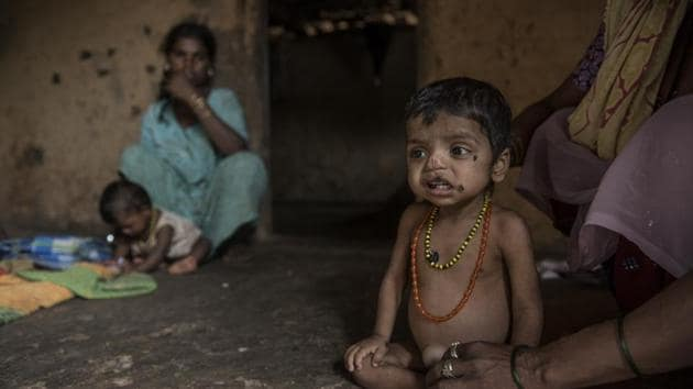 Every third malnourished child in the world is Indian. Every third child in India is malnourished. They deserve much better from their governments than escape paths to the central duty of a caring state to ensure adequate nutritious food in their bellies(Satish Bate/HT PHOTO)
