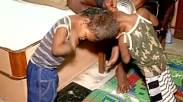 The conjoined twins were taken to AIIMS in Delhi on July 14 from Milipada village in Kandhamal district of Odisha.(ANI File)