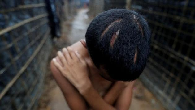 <p>Nur Kamal, 17, poses for a photograph showing head injuries, at Kutupalang refugee camp, near Cox's Bazar in Bangladesh.Since ethnic violence erupted in...
