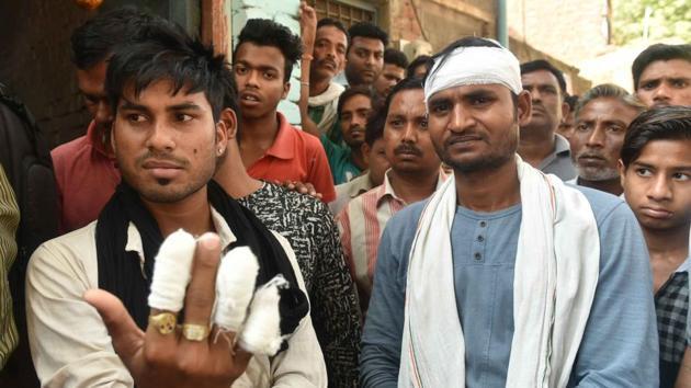 Injured Dalit youths Raju and Pradeep Jatav during the Bharat Bandh in Gwalior on Tuesday.(Mujeeb Faruqui/HT Photo)