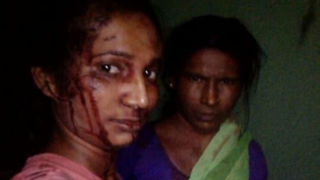 21-year-old Rupali Meshram fought off 'tiger' with a stick in Maharashtra (Facebook/Rupali Meshram)