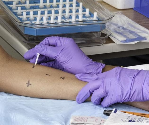 About 5% of India's population suffers from some form of allergy. The skin prick test is one of the ways to test for it.