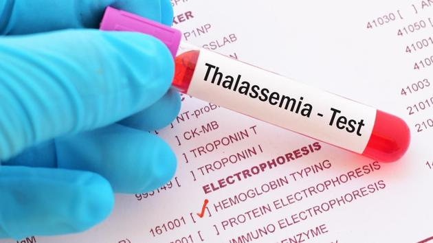 Can this new technique detect and treat thalassemia?(Shutterstock)