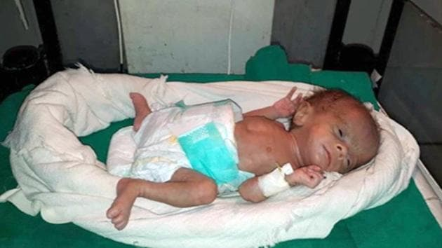 Newborn girl weighing 830 grams was admitted to neonatal intensive care unit (NICU) at the district hospital in Dholpur.(HT PHOTO)
