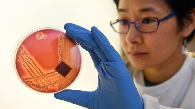 Jean Lee, a PhD student at Melbourne's Doherty Institute, inspects the superbug Staphylcocus epidermidis on an agar plate in Melbourne.(AFP)