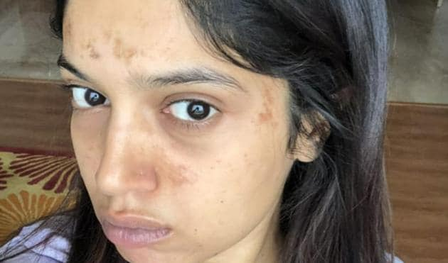 Bhumi Pednekar plays an old shooter in SSaand Ki Aankh. She has developed blisters after shooting in the heat.
