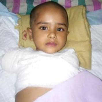 Aditya Gaikwad was playing at the terrace of the building located near the transformer when he suffered severe electric shock on April 18. He was visiting his relative's house in Ambegaon Khurd. Doctors had to amputate all limbs of the three-and-a-half-year-old-boy.(HT/PHOTO)
