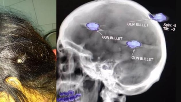 Sumeet Kaur survived with three bullets in the head and one in the jaw. Her nephew shot at her mother Sukhjinder Kaur and her in a fit of rage over a land dispute. Both women have been operated upon and are out of danger. (HT Photo)