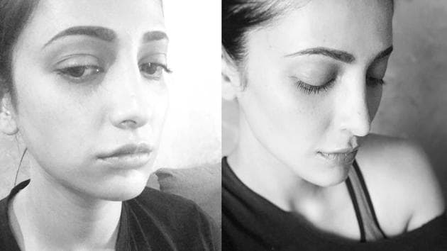 Shruti Haasan made it clear that she has had plastic surgery done.