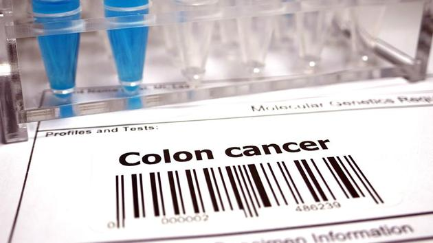 Colon cancer mostly occurs in those older than 50 years of age.(iStock)