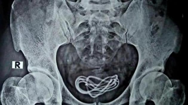 An X-ray of a 30-year-old man's abdomen shows the mobile charger cable. A doctor performed a surgery to remove the mobile phone charger cable inside his urinary bladder.(Sourced)