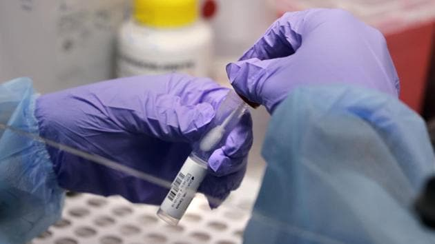 Only labs affiliated with the Indian Council of Medical Research are permitted to conduct RT-PCR and True Net tests to establish the presence or absence of coronavirus.(AP/representative photo)