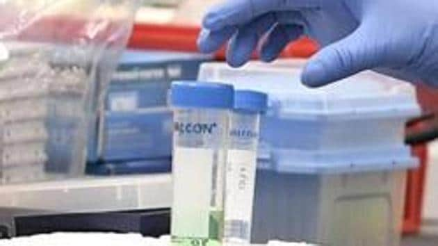 RT-PCR is now considered the gold standard for diagnosis of the coronavirus disease.(AP)