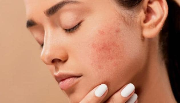 Yes, dry skin breaks out too! Here are 4 ways to manage it according to a  dermatologist - Hindustan Times