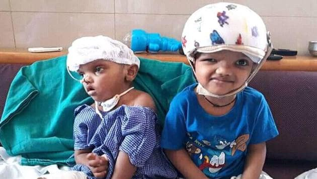 After the post-operative rehabilitation and care in AIIMS New Delhi for almost 2 years, the twins returned to Odisha in September last year, but did not go back to their home in Kandhamal and remained at SCB Medical College under the supervision of a team of doctors.(HT PHOTO.)