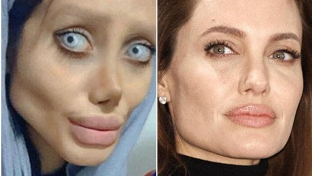 Sahar Tabar had made headlines for allegedly undergoing surgery to alter her appearance.