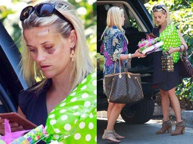 Reese-Witherspoon-after-her-accident