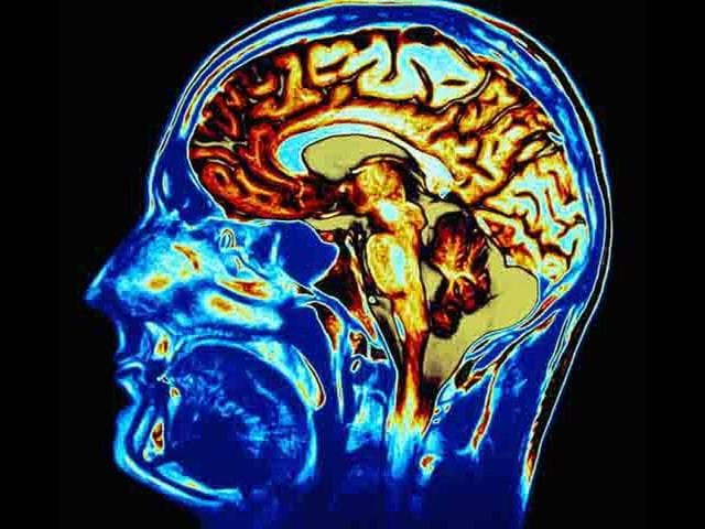 Scientists,Washington University,Brain Imaging