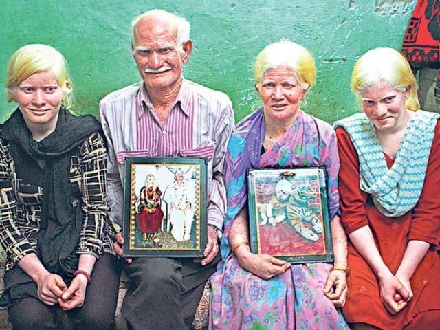 Guinness World Records,albino family,news