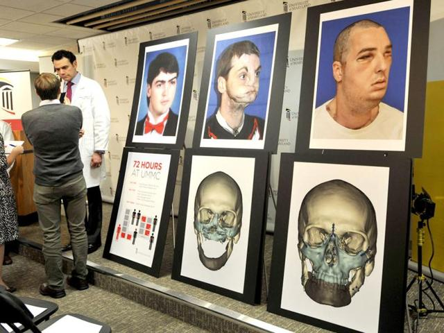 Eduardo-D-Rodriguez-MD-Chief-of-Plastic-Reconstructive-and-Maxillofacial-surgery-at-the-University-of-Maryland-Medical-Center-talks-with-reporters-about-the-most-extensive-full-face-transplant-completed-to-date-performed-on-Richard-Lee-Norris-pictured-at-right-after-a-news-conference-at-the-University-of-Maryland-Medical-Center-in-Baltimore-AP-Photo-Gail-Burton