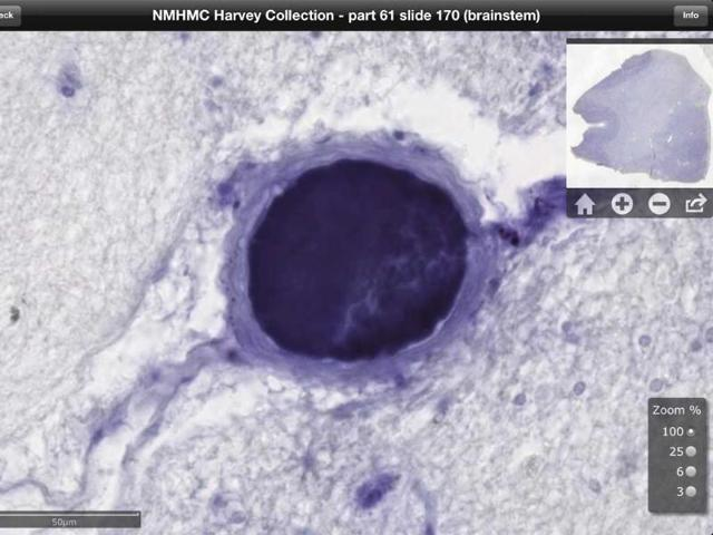 This-digitized-image-made-from-a-screen-shot-of-a-new-iPad-app-shows-an-image-of-brain-tissue-from-Albert-Einstein-AP-Photo