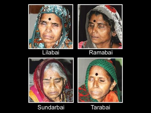 State-sponsored-eye-camps-blind-seven-in-Bhopal-HT-photo