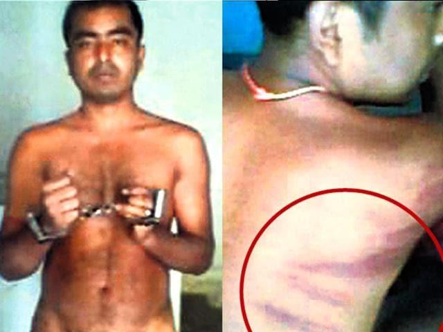 Bikram-Mahato-the-undertrial-at-Dum-Dum-Jail-bears-the-marks-of-torture-HT-Photo