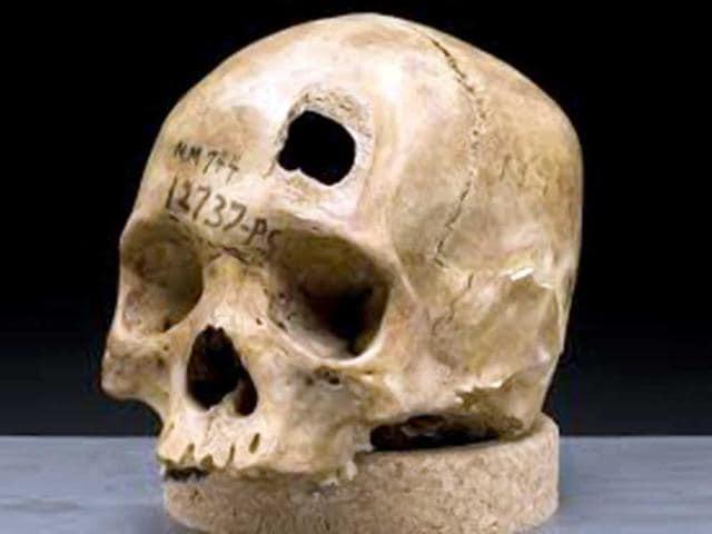 A-human-skull