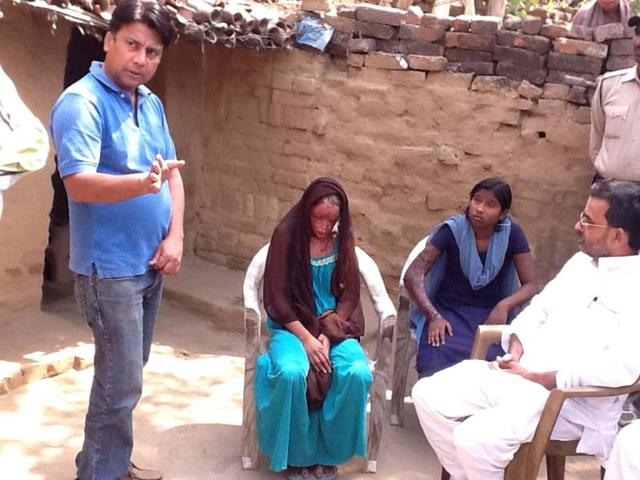 Two-two-teenager-acid-attack-victims-Chanchal-and-her-younger-sister-Sonam
